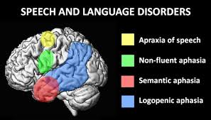 Things you must know about speech and language