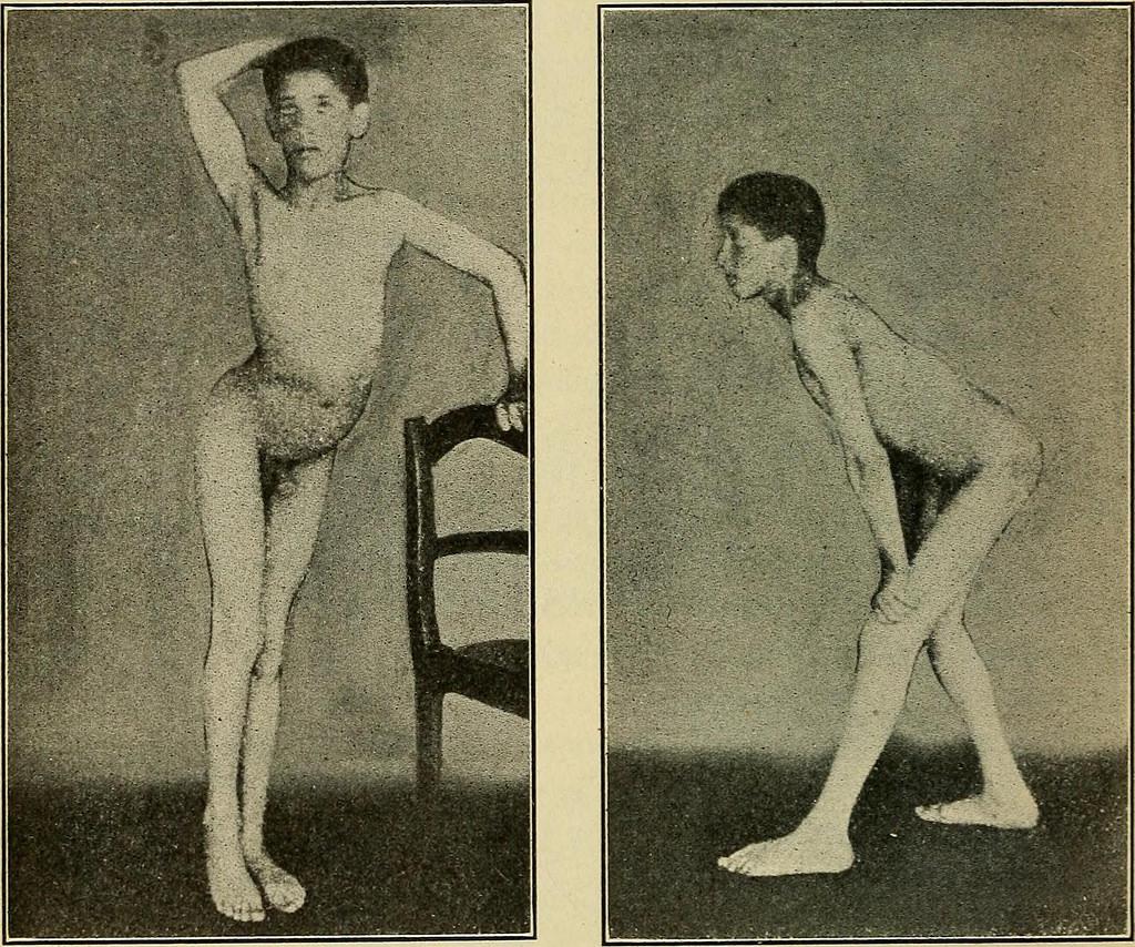 What IS Torsion Dystonia Disease;( Dystonia Musculorum Deformans)