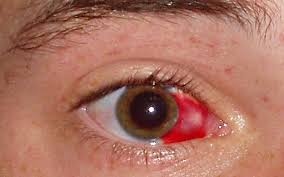 What Is Toxic Amblyopia In Neuropathy;Pathogenesis And Treatment