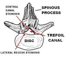 What Are The Types of Spinal Injuries;( Spinal Cord)Types