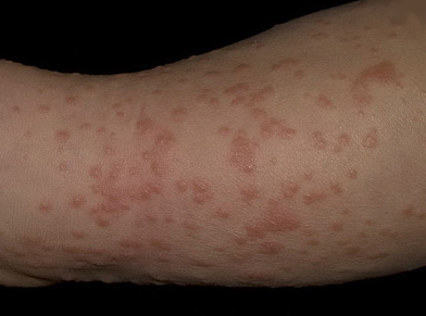 What Is Boutonneuse Fever;Diagnosis,Treatment And symptoms