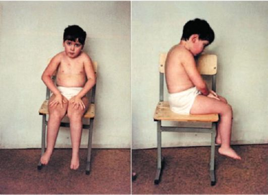 What Is Murine Typhus Fever;Diagnosis,Treatment And Prevention