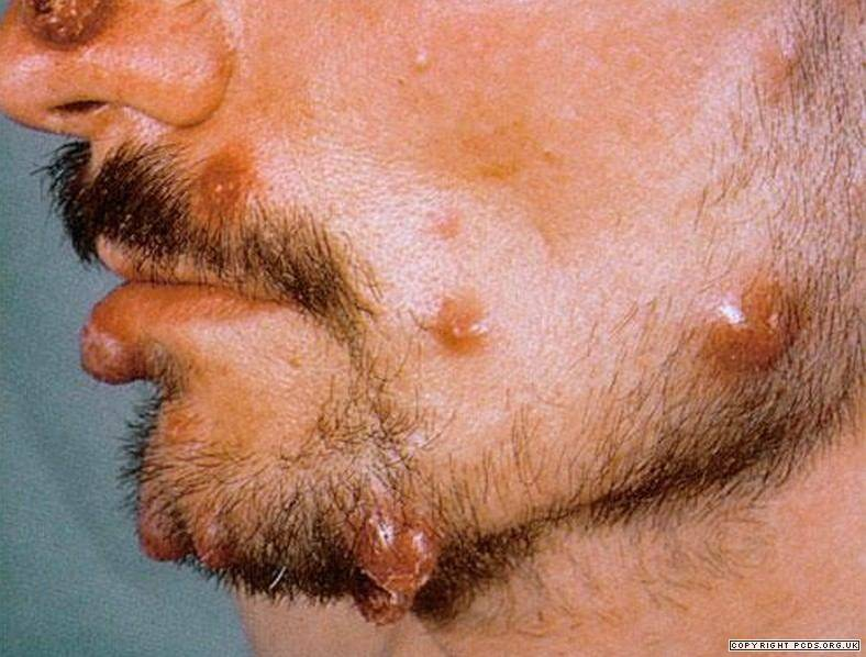 Bartonellosis;Diagnosis,Treatment And Prevention