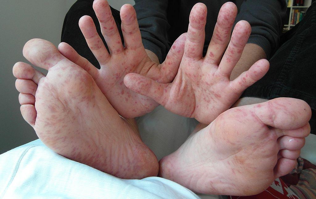 What Is Bornholm Disease;Diagnosis,Treatment And Pathology