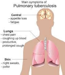 What Is CHRONIC PULMONARY TUBERCULOSIS