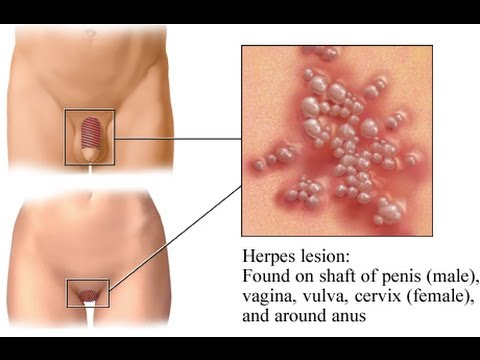 What Is Herpes Simplex;Diagnosis,Treatment And Pathogens