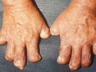 What Is Leprosy;Diagnosis,Treatment,Prevention