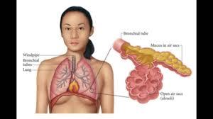 What Is Pneumonia;Diagnosis,Treatment, Prognosis