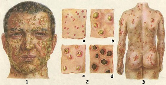 What Is Rickettsialpox;Diagnosis,Treatment And Symptoms