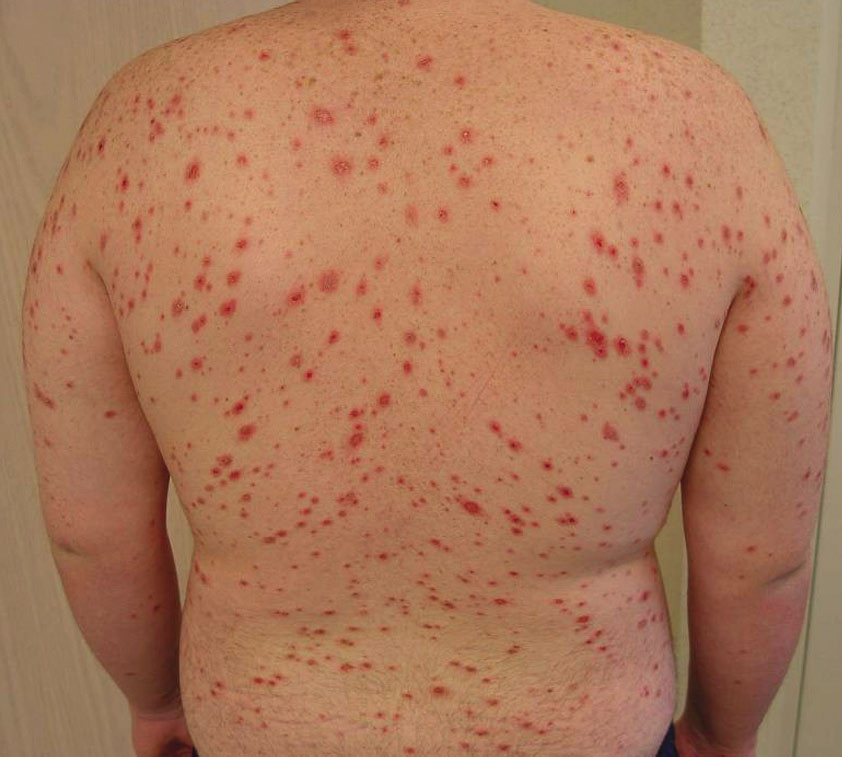 What Is Rocky Mountain Spotted Fever;Symptoms,Treatment And Prevention