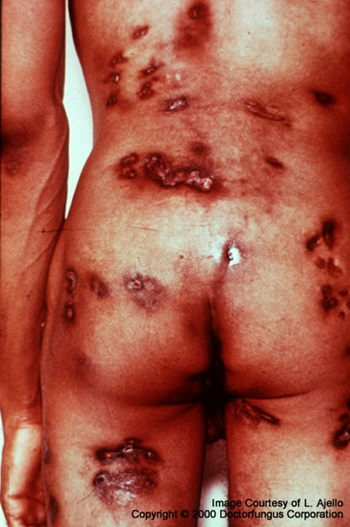 What Is Coccidioidomycosis;Treatment,Diagnosis And Prognosis