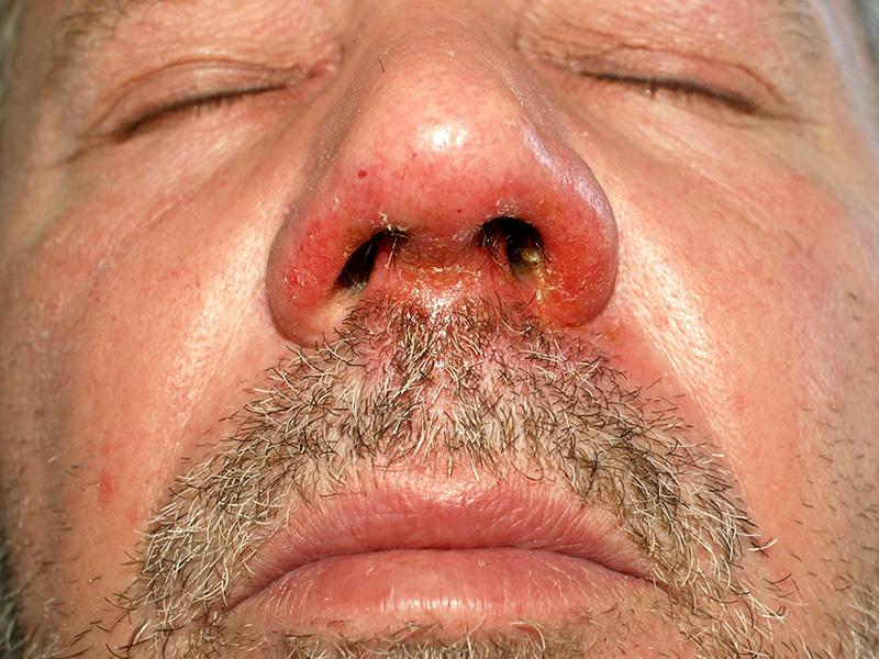 What Is Visceral leishmaniasis (Kala-azar);What Does It Do?