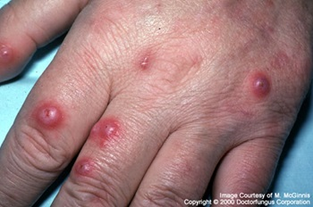 What Is Cryptococcosis;Treatment,Diagnosis And Pathology