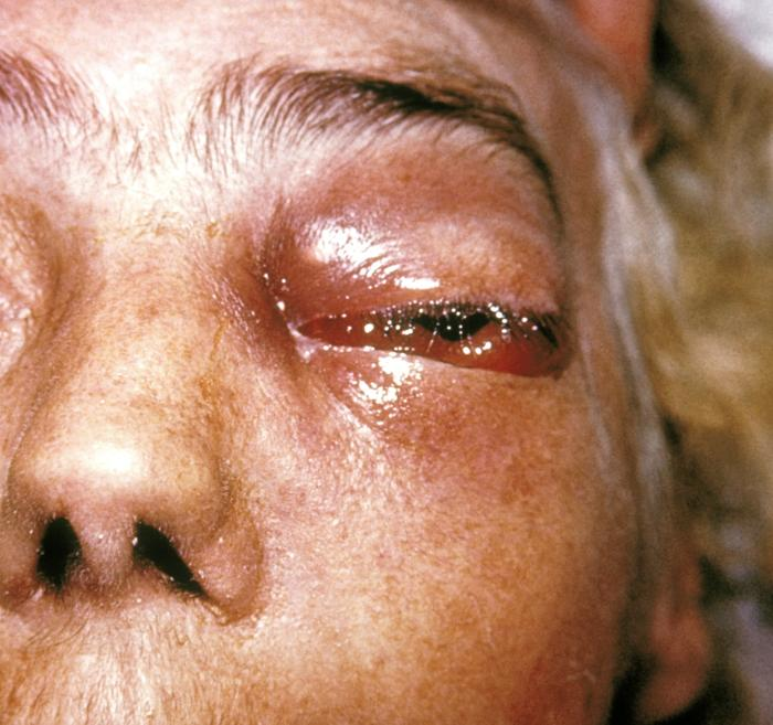 What Is Mucormycosis;Diagnosis And Treatment And Prevention