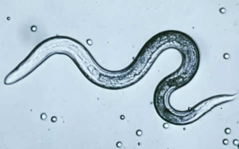 What Is Toxocariasis;How We Can Do Treatment of Toxocariasis?