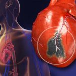 What Are Different Types of Heart Failure In Human Being