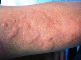 What Is Hives(Urticaria);Etiology,Causes And Treatment