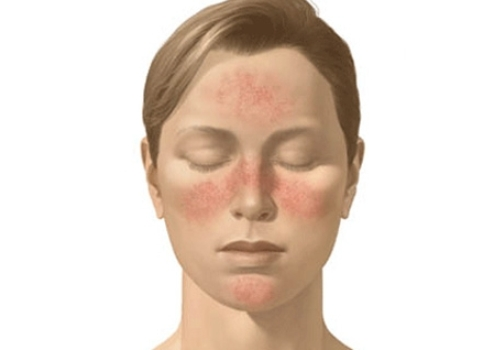 What Is Systemic Lupus Erythematosus;Diagnosis And Treatment