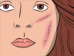 What Is Cystic Acne;Causes And Treatment You Must Know