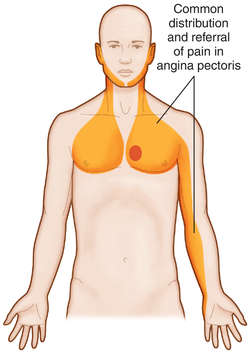 What Is Angina Pectoris;Causes, Diagnosis And Treatment