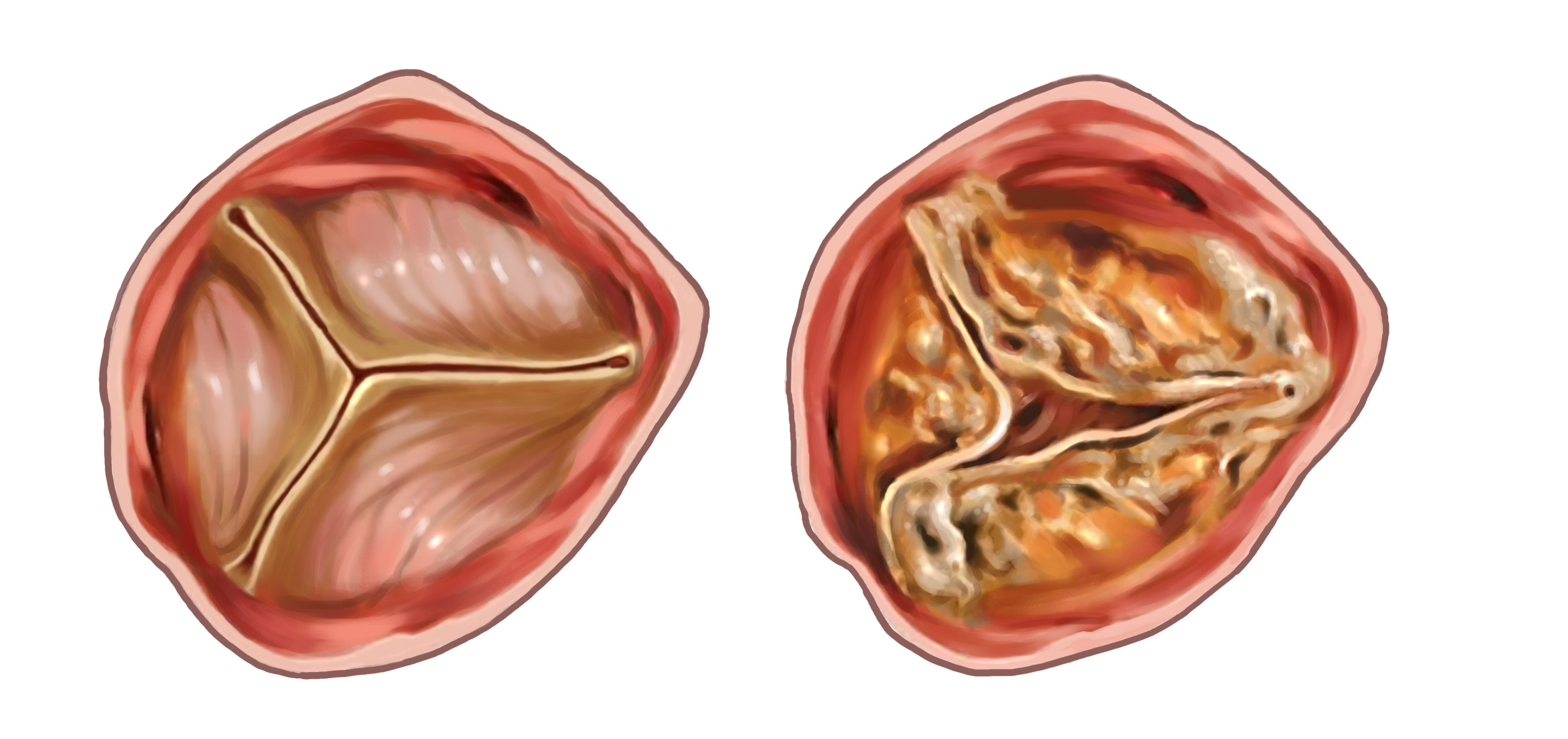 What Is Tricuspid Stenosis;What Does It Do?