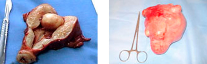 What Is Hysterectomy; What Does It Do?