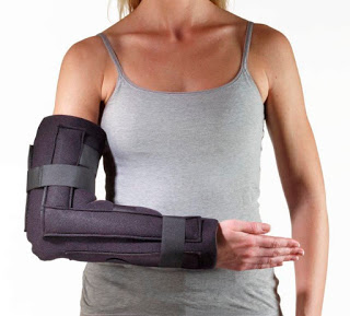 What Is Dislocation;Causes,Treatment And Prevention