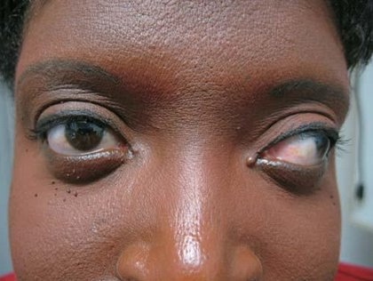 What Is Strabismus,Causes,Treatment And Cure