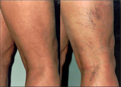 What Is Varicose Veins;Symptoms,Prevention And Surgical Treatment