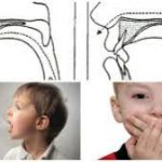 What Is Agraphia;Causes,Types, Diagnosis,Treatment And Prevention